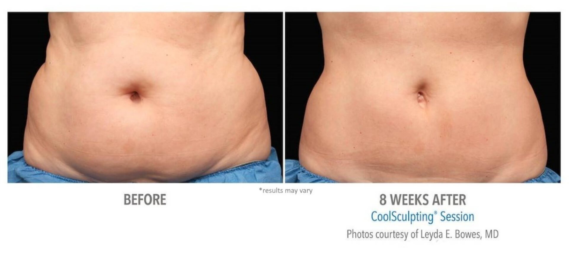 CoolSculpting Before and After   Real Patient Results - Sculptology